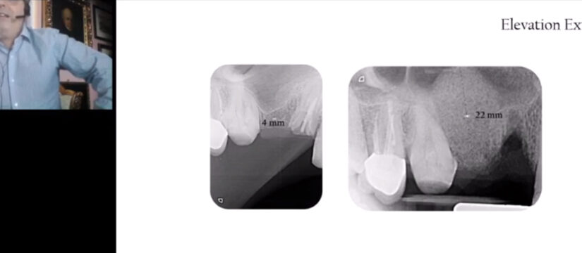 Minimally Invasive Management of Implant Supported Rehabilitation in the Posterior Maxilla IPA